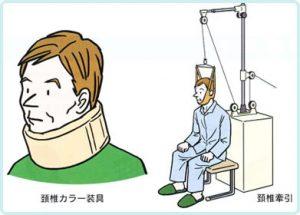 頸椎ヘルニア 2